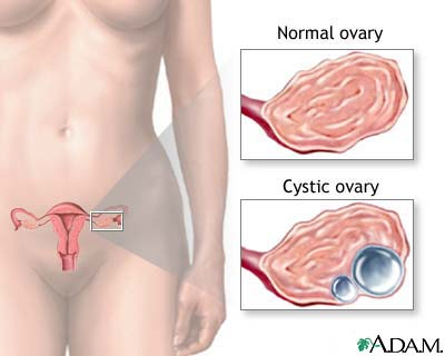 It is very common for women to develop some form of cysts on ovaries during ...