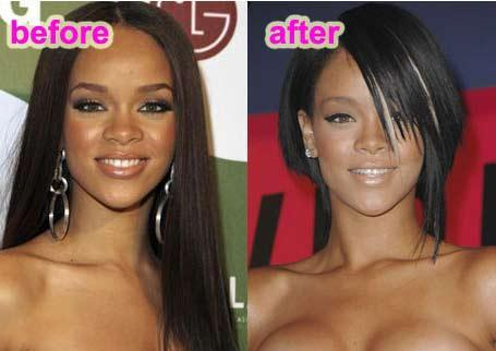 rihana face surgery