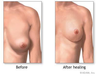 mastopexy or breast life surgery
