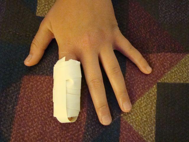 Broken Finger-4.bp.blogspot.com