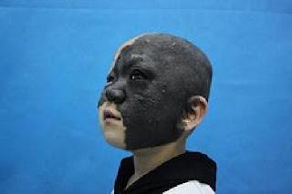ผ่าตัดรอบสองแล้ว เด็กหญิง 4  ขวบจีนเป็นโรคหน้าดำ ลุ้นหายเป็นปกติ