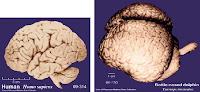 cérebro humano comparado ao cérebro de um golfinho nariz-de-garrafa