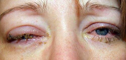 ögoninflammation ena ögat