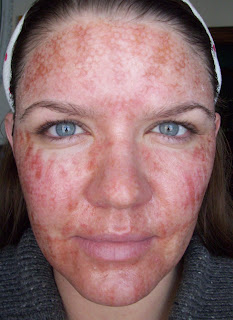 dot laser treatment essay Deka smartxide dot laser fractional resurfacing treatment (dermal optical thermolysis) or dot is a non-invasive laser therapy that.