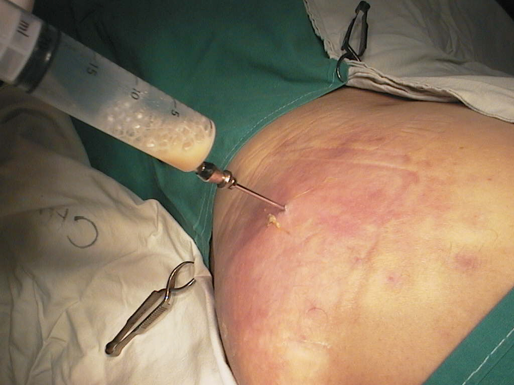 aderente postoperatorii histerectomie