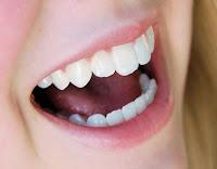 Seis poderosos alimentos que deixam seus dentes mais saudáveis