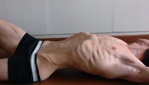 osteoporose anorexia