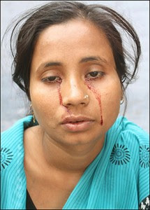 indian girl picture pic photo image gallery with blood in her cries