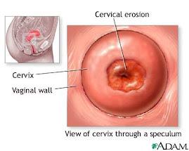 Cervical ectopy