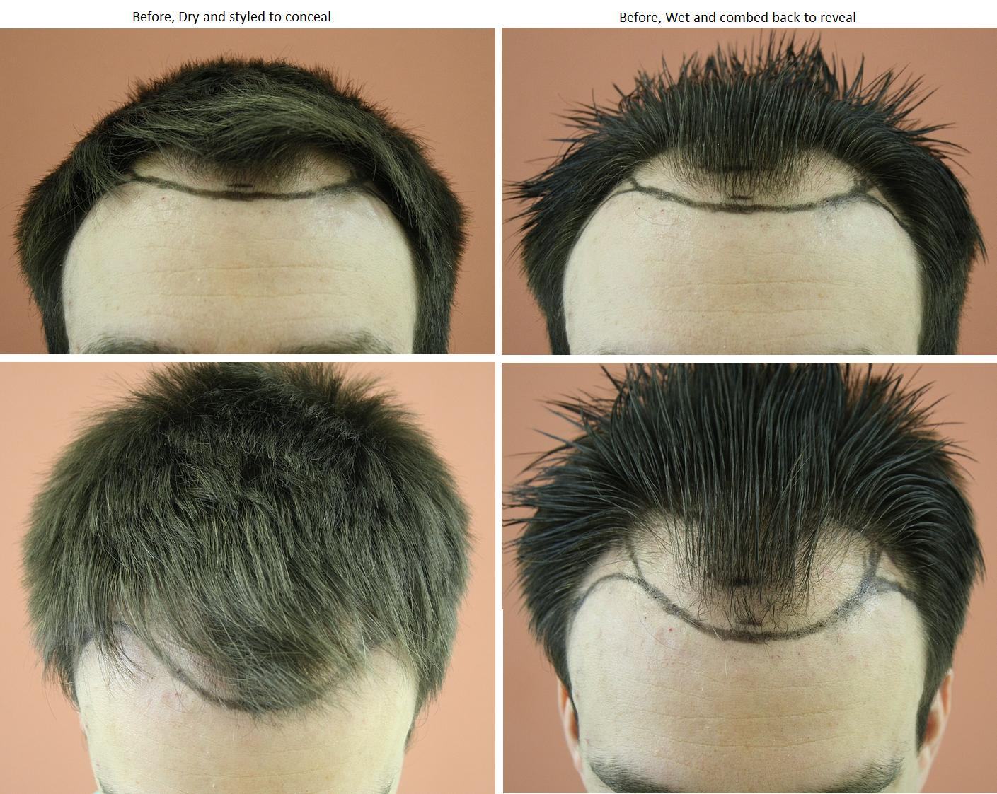 international hair loss forum dr bisanga 2927 fue 0 12 mois. Black Bedroom Furniture Sets. Home Design Ideas