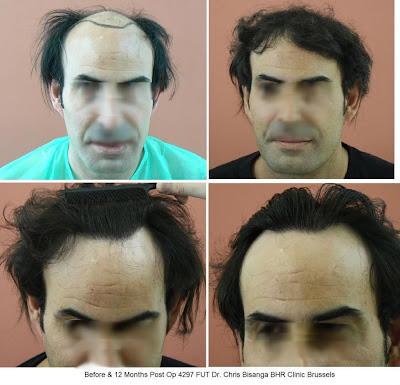 greffe de cheveux photos 15780 cheveux en seulement deux op rations 4297 fut puis 1700 fut. Black Bedroom Furniture Sets. Home Design Ideas