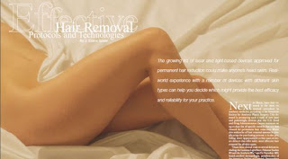 Effectice Hair Removal Technologies