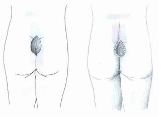 Erkeklerde Penis Kılları Nasıl Alınmalı