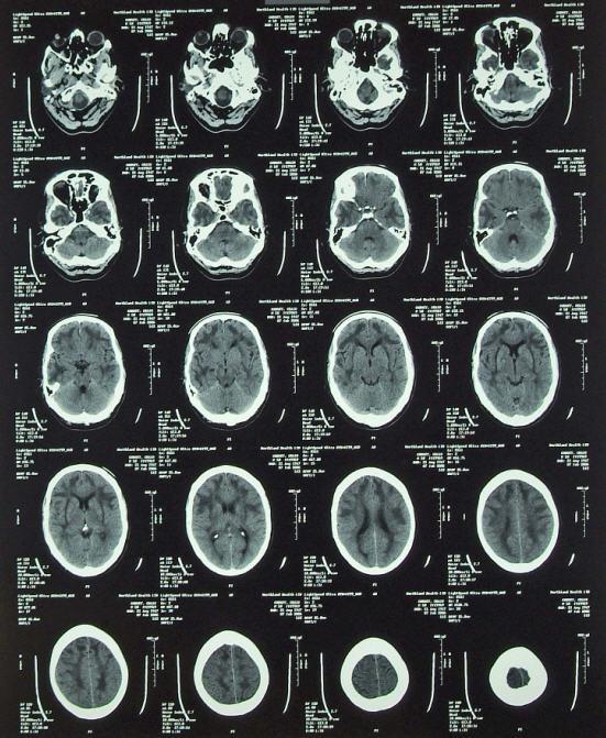 [brain.jpg]