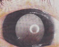  Congenital Cataract, a Corneal Defect and Condition In Children