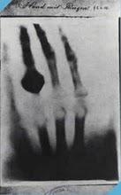 Primeira Radiografia tirada por Roentgen