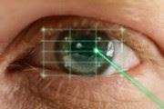 oeil laser