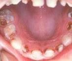 Caries Dentales 1