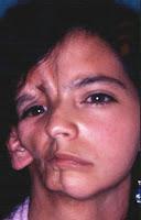 Resultado de imagen de asimetría en los rostros humanos