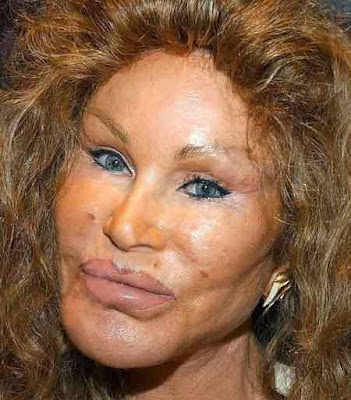 Jocelyn Wildenstein before after
