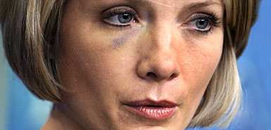 dana-perino-black-eye-following-shoe-throwing-incident.jpg
