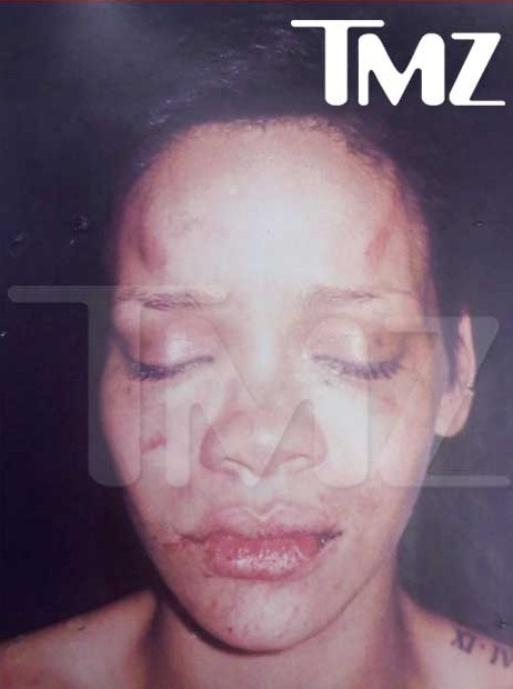 rihanna-facial-injuries