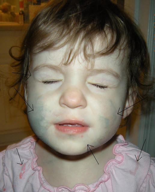 Дети с синдром ларсена фото