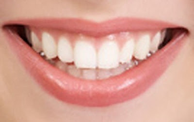 Los Angeles Tooth Whitening