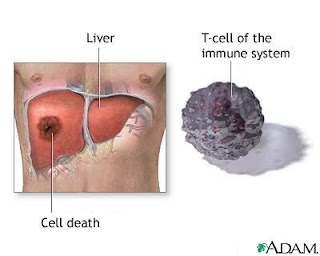 ABSES HATI ( Liver Abscesses)