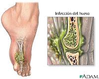 Infeksi Jaringan Tulang (osteomielitis)