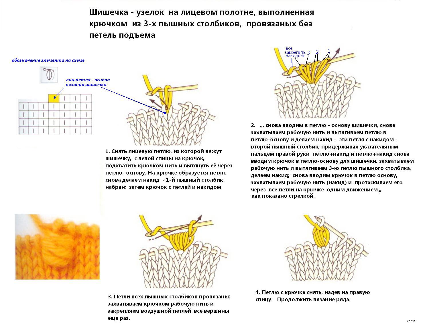 Узоры для вязания спицами шишечками для берета
