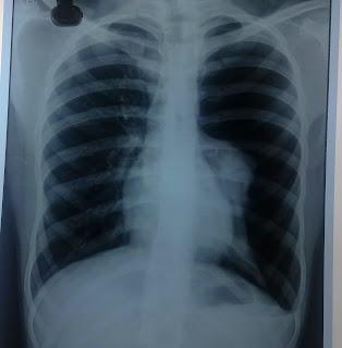 tension pneumothorax x ray - 314×320