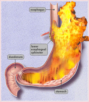 stomach doesn t empty properly this often occurs in diabetics stomach ...