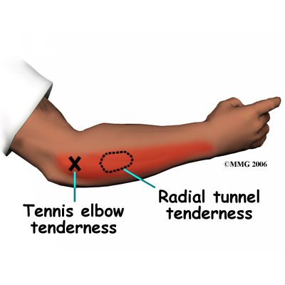 tennis elbow treatment exercises pdf