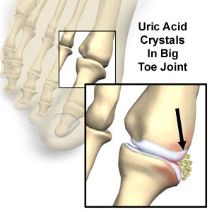 gout and massage therapy treatment of gout disease best foods to control uric acid