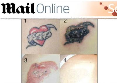 rejuvi-creme-para-remover-tatuagens