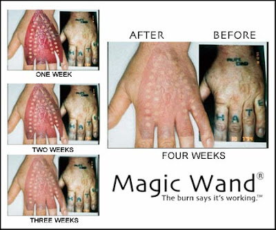 Magic Wand Home Tattoo Removal System. Tattoo Removal