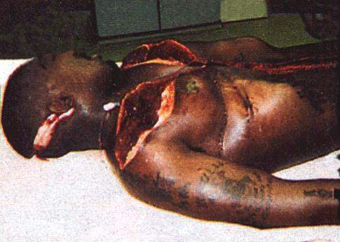 Mansion dark moon furthermore tupac dead body autopsy moreover tupac