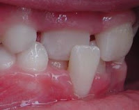 Pediatric Dentistry: Anterior Crossbite
