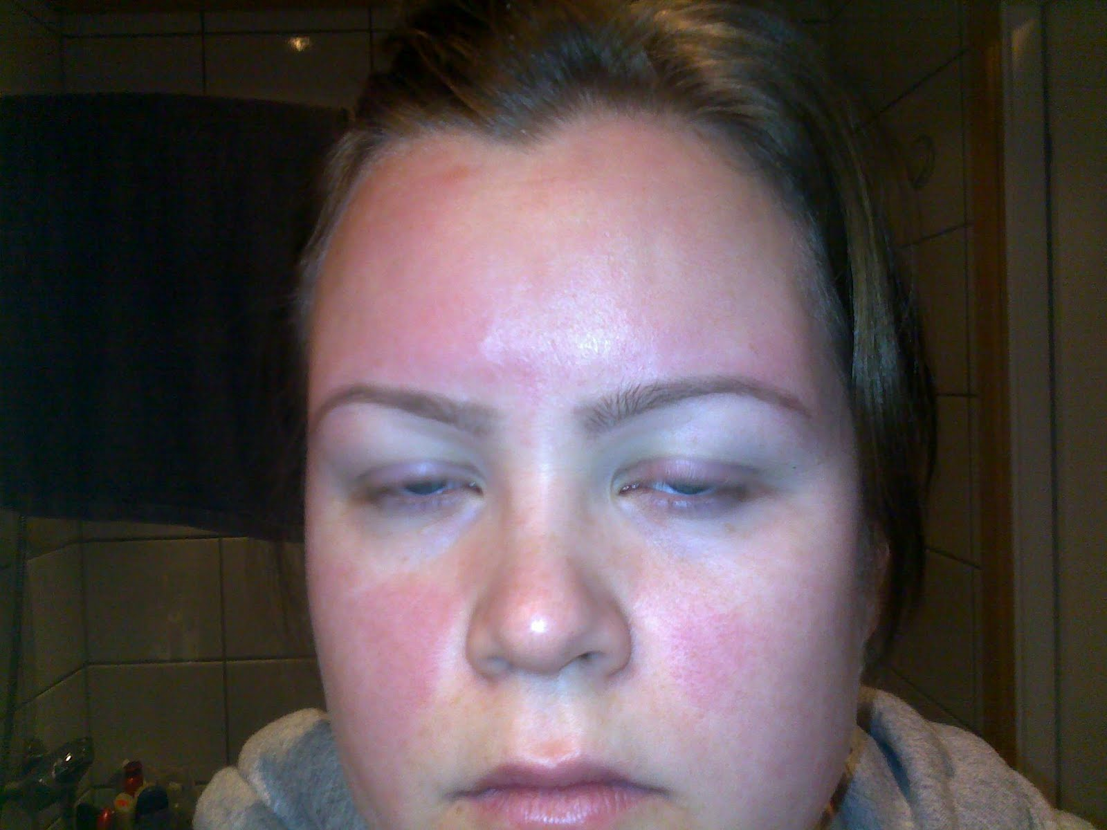 allergi utslett ansikt