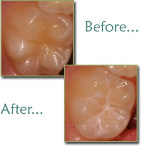 Dental Sealants a great way