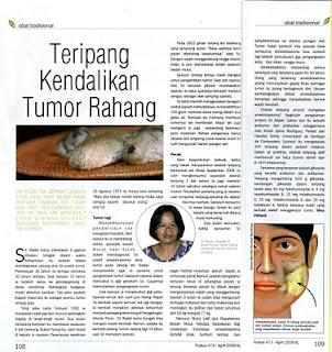 mengobati tumor rahang