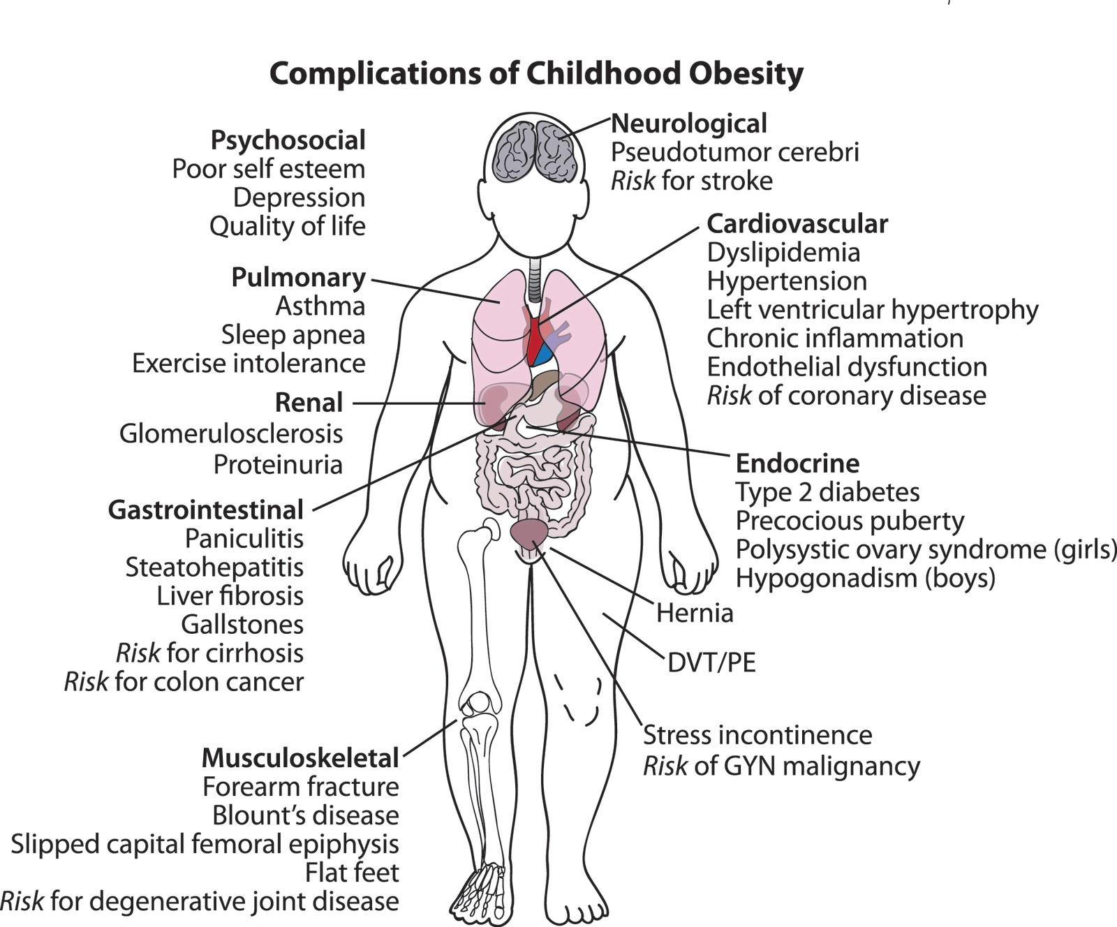 effects of child obesity essay Increases in advertising for nonnutritious foods are linked to high rates of  childhood obesity, which increases morbidity and mortality and has substantial.
