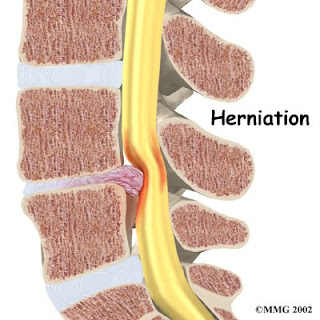 lumbar herniation causing stenosis