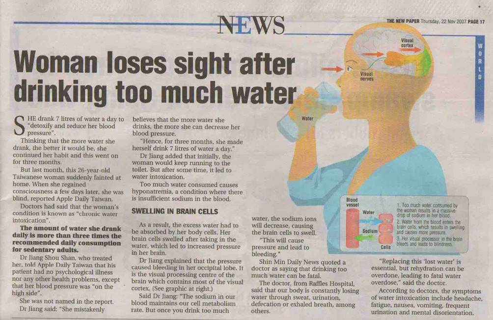 Drinking Too Much Water Symptoms Not Intoxication