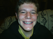 Braces, the Before and After