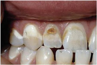 Cosmetic Dentistry, enamel demineralization remedies, dental treatment