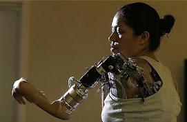 La robótica mejora la calidad de vida de las personas con discapacidad física