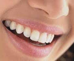 Diş Beyazlatmak İçin Doğal Yöntemler