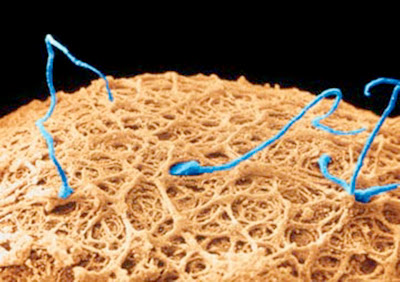 Each sperm cell surrounding this egg cell is trying to enter it and leave its packet of genetic information in the form of chromosomes containing DNA.  Only one will be successful.  In order for the newly formed organism to have the same number of chromosomes as its parents, the chromosome number must be halved when the egg and sperm are made.  This is accomplished by a process called meiosis.  Then, when one sperm successfully fertilizes the egg, the diploid chromosome number is restored.
